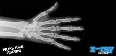 دانلود نرم افزار X-Ray Scanner برای اندروید